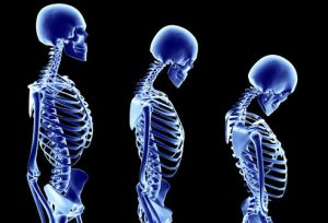 preview-full-princ_rm_photo_of_stages_of_osteoporosis