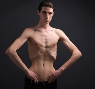 anorexic man build healthier body with Progentra