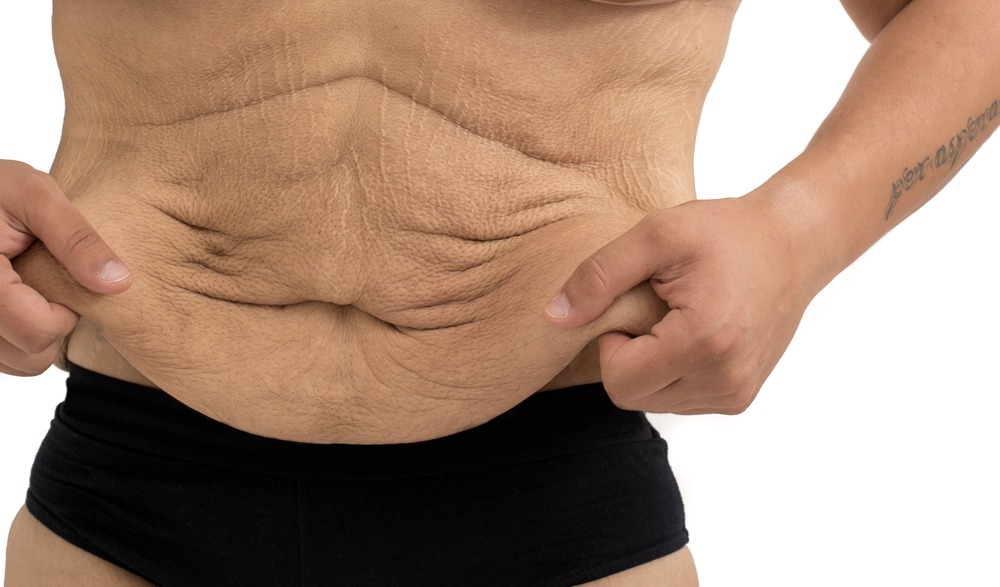 man who takes Progentra with stretch marks due to weight loss