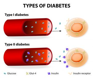 The Different Types of Diabetes